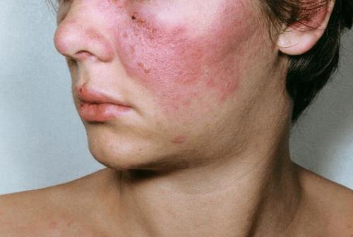 a kötőszövet etiológiájának szisztémás betegségei