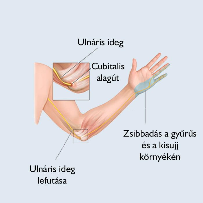 ujj zsibbadás és ízületi fájdalom)