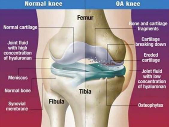 a térdízület 2. fokú deformált artrózisa)