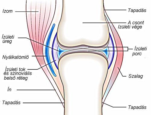 a csípőízület deformáló ízületi gyulladása okozza)