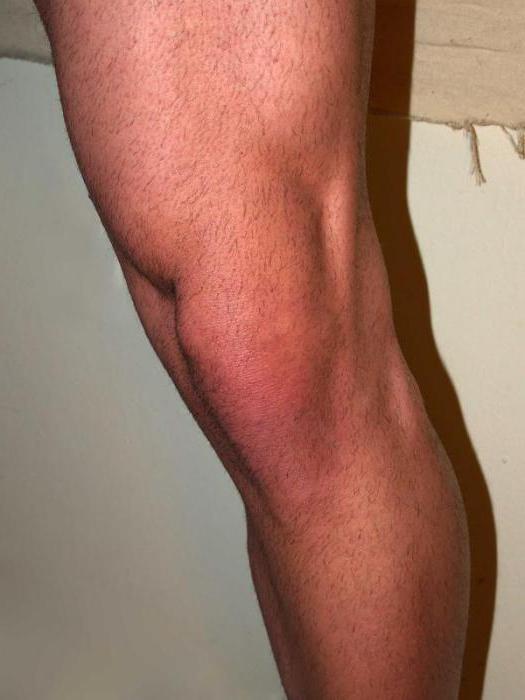 a térdízület laterális meniszkuszának károsodása