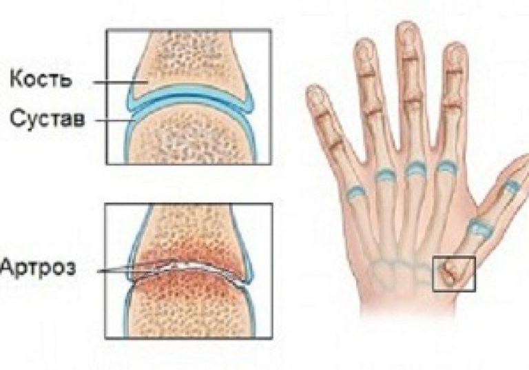 mint a kezek ízületeinek kezelése