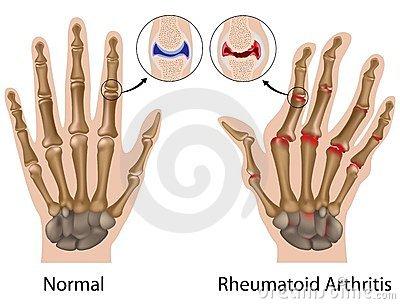 ujjak ízületeinek betegségei