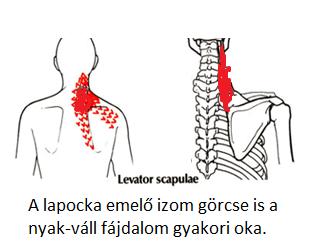 Mikor adhat okot aggodalomra a nyakfájás?