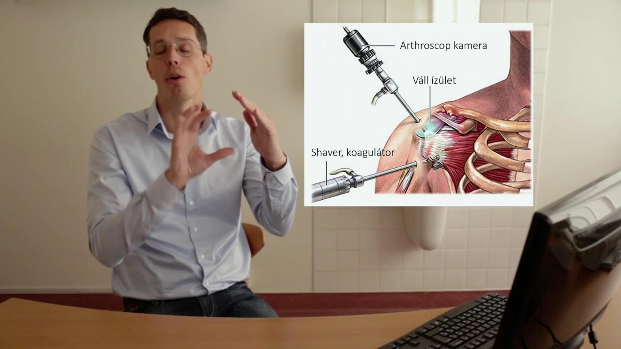 mi lehet a térd betegsége ortomolekuláris gyógyszer az ízületek kezelésében