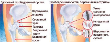 mi a teendő, ha a medence ízületei fájnak)