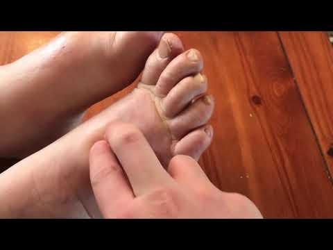 boka ízület fáj az egyik lábán)