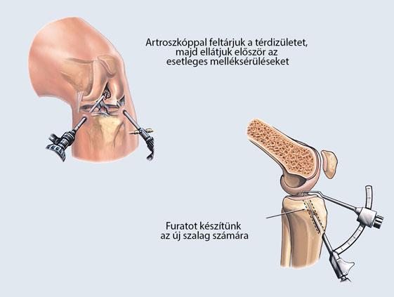 izomfájdalom a térdízület körül)
