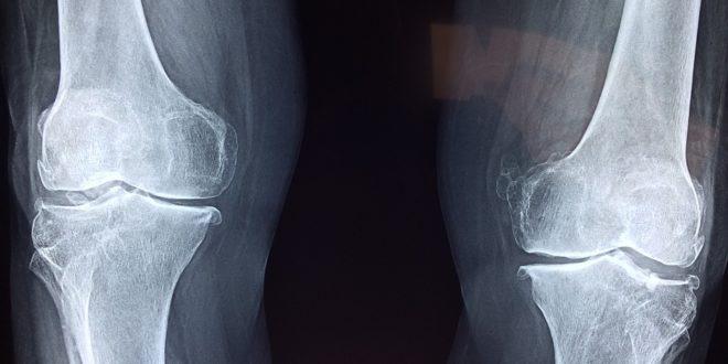 orvosi epe térd artrózissal