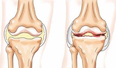 Súlyos fájdalom a lábak izmain. A láb lágyszöveti gyulladása