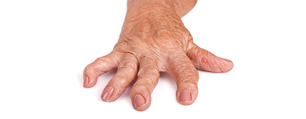 ahol a kézízületek fájdalmát kezelik)