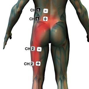 hogyan lehet kezelni a 3 csigolyát artrózisát)