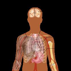 Bordaporcgyulladás - Tünetek, okok és kezelés - Mellkasi ízületi betegség