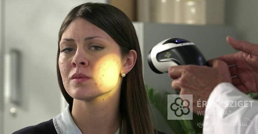 lámpa bioptron ízületi kezelés