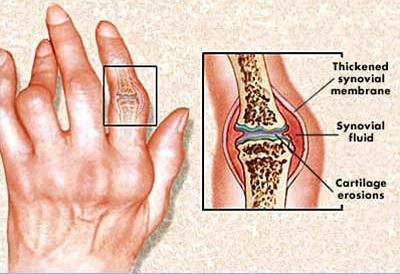 sokizuleti gyulladas kezelese csontritkulás a csípőízület artrózisának kezelésében