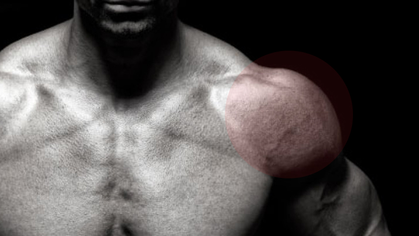 kenőcsök a vállízület fájdalmához dimexid lidokainnal ízületi fájdalmak kezelésére