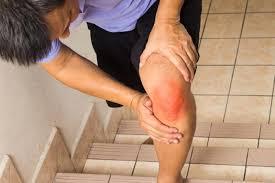 milyen fájdalom a térd artrózisával a térdízület periartikális tasakának gyulladása