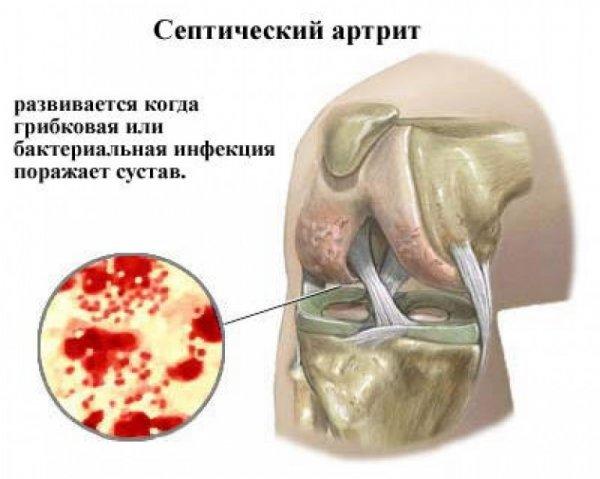 térdízületek gyulladása