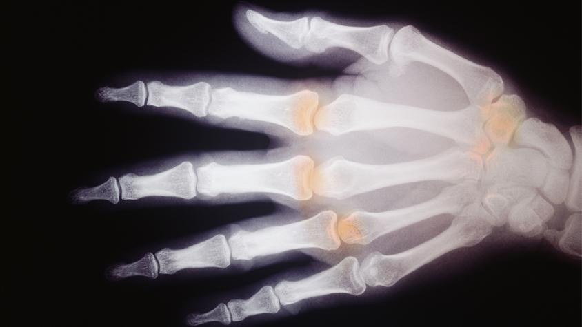 hogyan kezeljük a csontok ízületeit