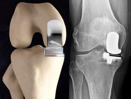 a térd stádiumának artrózisa 2