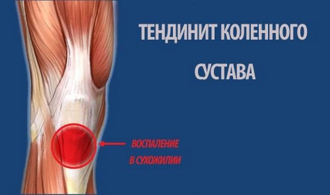 indometacin térd ízületi gyulladás esetén)