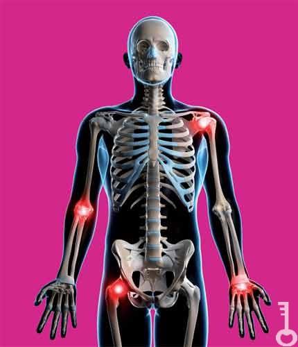 deformáló artrózis gyógyszeres kezelése glükozamin-kondroitin gyógyszertár