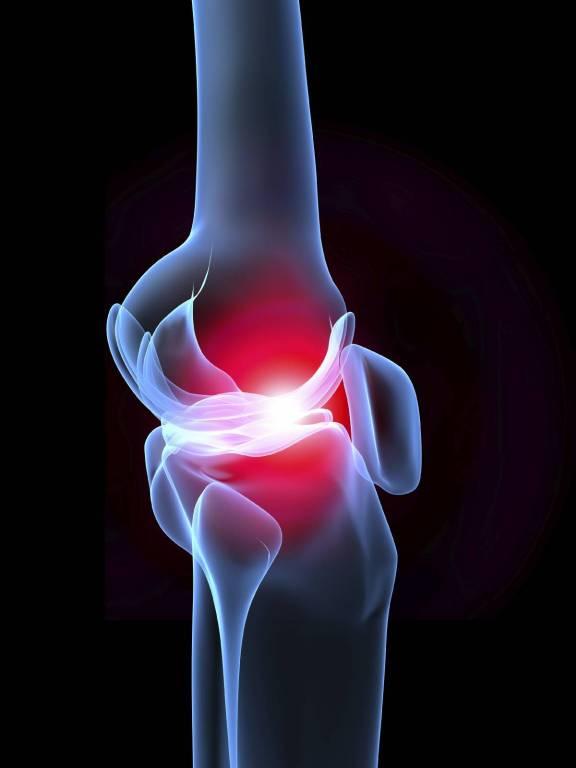 krémek dimexiddal ízületi fájdalmak kezelésére)
