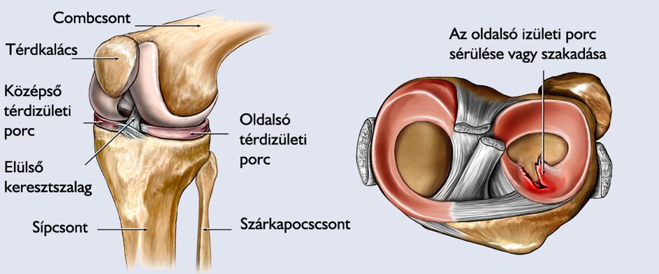 Poszttraumás deformáló artrózis a könyökízületben, Hol alakulhat ki artrózis?