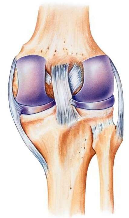 A posterior cruciate ligament szakadás - Homorú-domború lencse