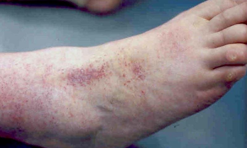 Neurodermitis kezelésében a kezek és lábak