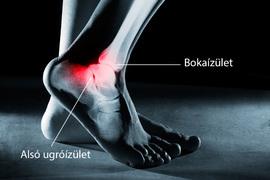súlyos fájdalom és duzzanat a bokaízületben)