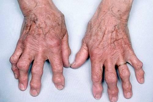 hogyan lehet megállítani a kéz ízületeinek deformációját artrózissal