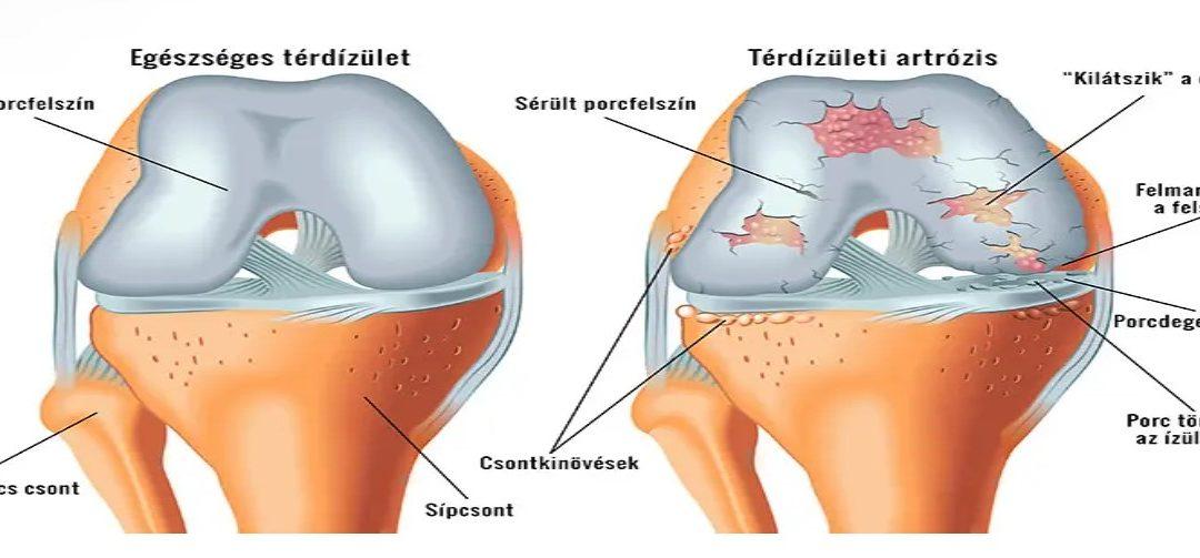 hírek a térd artrózisának kezelésében