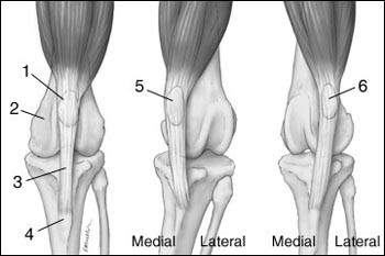 fájdalom a bokaízület artrózisával mit kell venni ha fájnak az ízületek