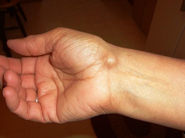 heves fájdalom a kéz csuklójában)
