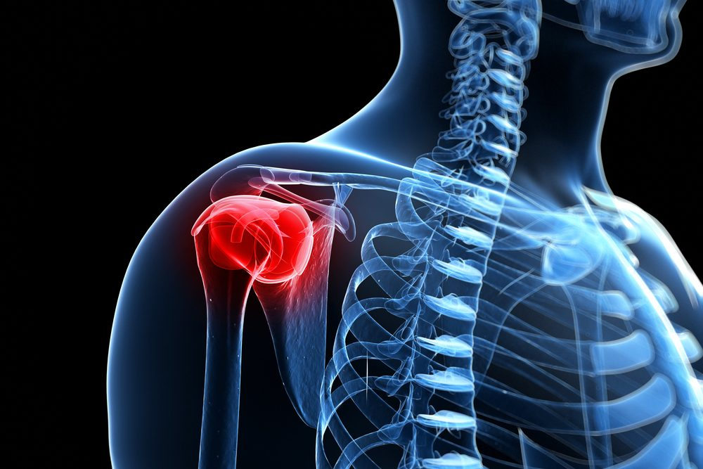 testépítés a vállízület fájdalma miatt