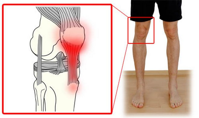 A harmadik fokú térdízület arthrosisának jellemzői, jellemzői