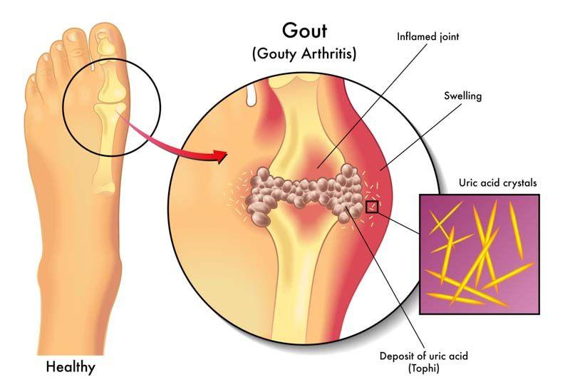 az artrózis megállítja a tüneteket és a kezelést)