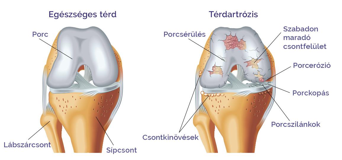 tinktúra térd artrózisához