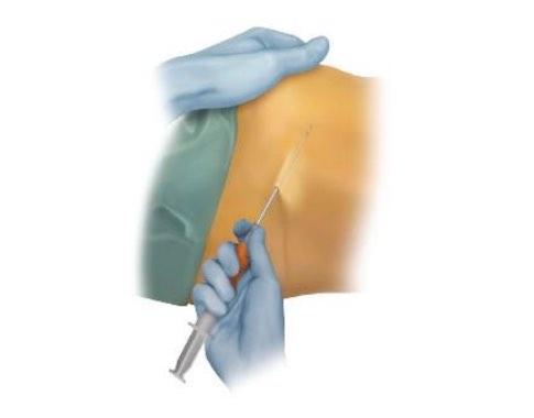 artróziszsír kezelés)