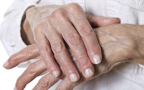 ízületi betegség amely a nyálkahártya bőrét érinti gyakorlatok a csípőízületek ízületi gyulladásának kezelésére