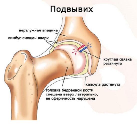 csípőízületek acetabularis dysplasia kezelése