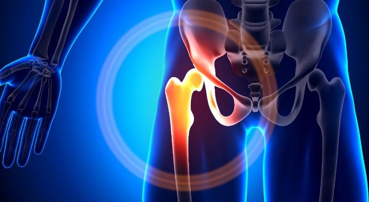 csípőfájdalom a csípőízület külső oldalán