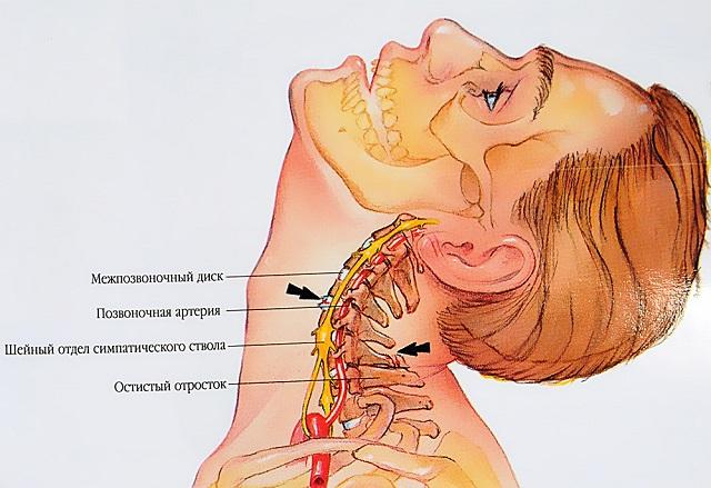a méhnyak kenőcsének osteochondrozisával)