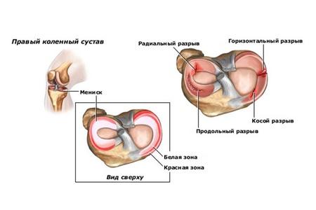 a bal térdízület ízületi elváltozása 1-2 fok