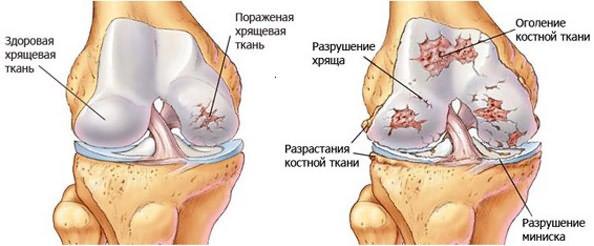 orvosi epe a csípőízület artrózisával)