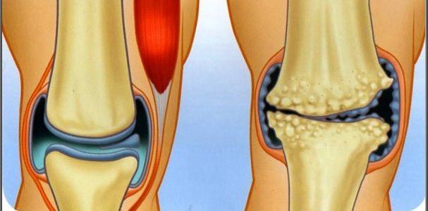 artrózis és csontritkulás kezelése)