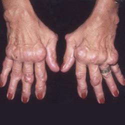 artritisz megnyilvánulások a kéz ízületeiben
