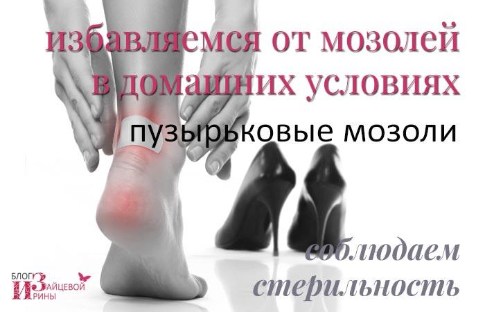 fájó ízület a lábánál, a nagy lábujj közelében
