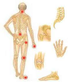 képek az ízületi fájdalmakról csípőtörés kezelési módszerei